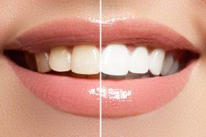Evansville dentist